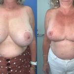 Perth Breast Implant Removal and Lift before and after Perth front