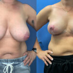 breast reduction perth front