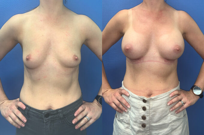 Patient 60 Breast Augmentation Perth front