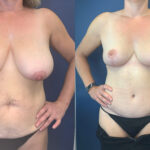 Patient 5 Body Makeover Perth front