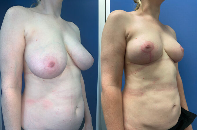 breast reduction perth oblique