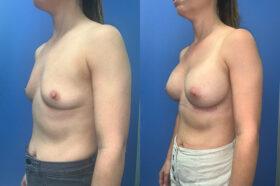 Patient 60 Breast Augmentation Perth oblique 2