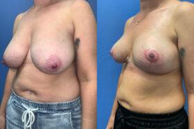 breast reduction perth oblique 2