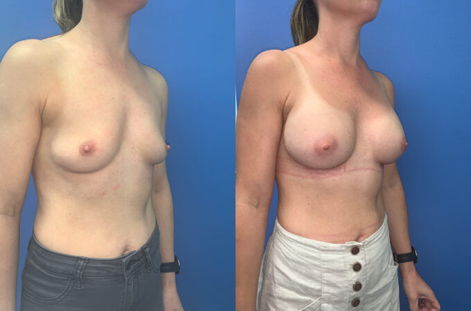 Patient 60 Breast Augmentation Perth oblique