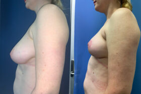 breast reduction perth side 2