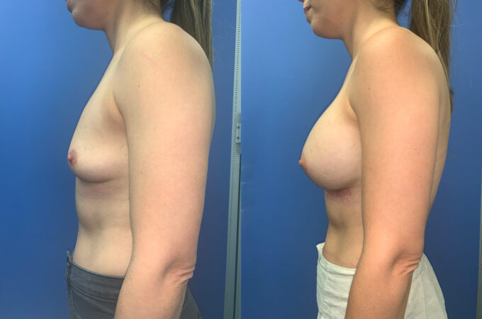 Patient 60 Breast Augmentation Perth side 2