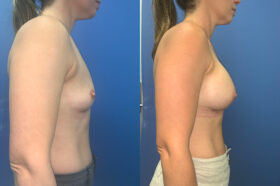 Patient 60 Breast Augmentation Perth side