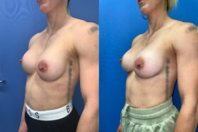 removal and replacement of breast implants perth oblique 2