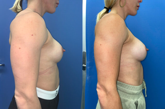 removal and replacement of breast implants perth side
