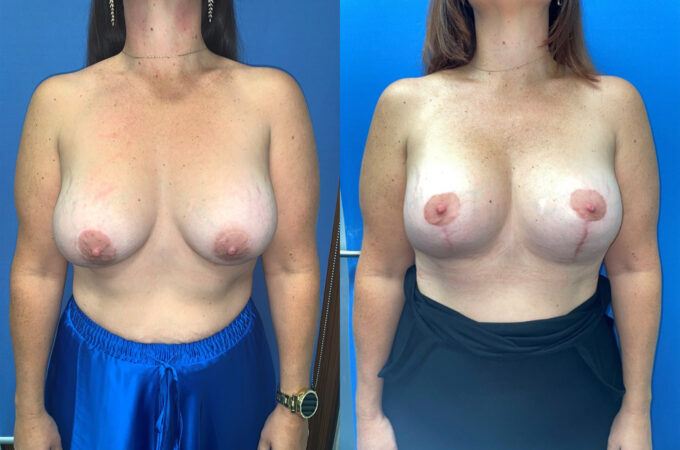 removal and replacement of breast implants perth front