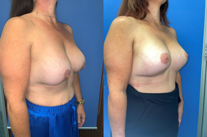 removal and replacement of breast implants perth oblique