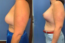 removal and replacement of breast implants perth side 2