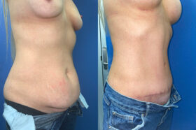 body makeover patient perth oblique