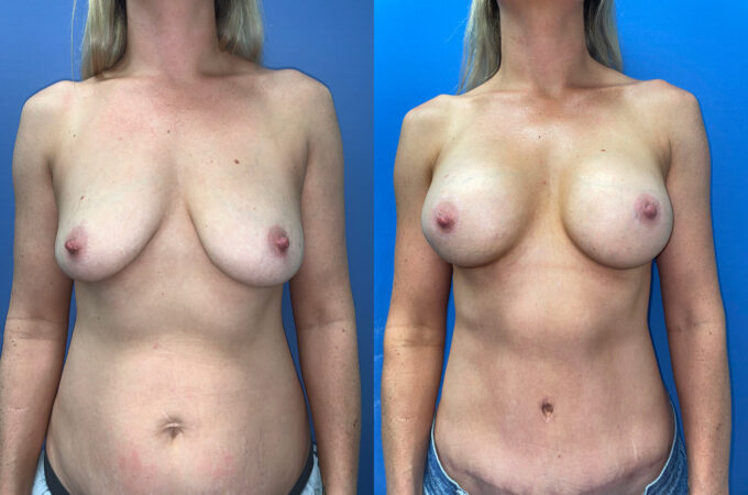 body makeover patient perth front