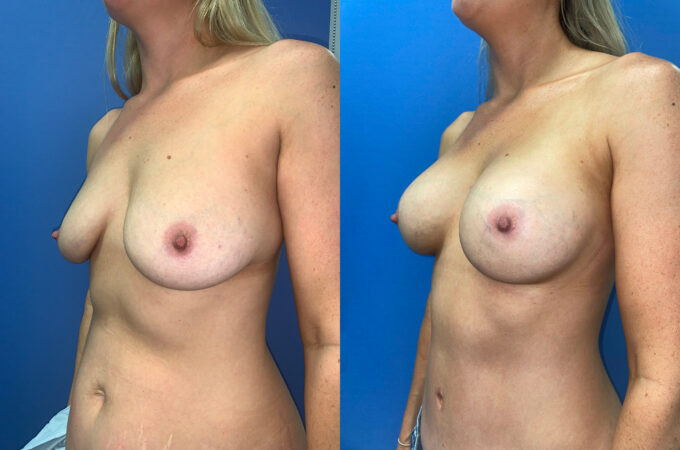 body makeover patient perth oblique 2