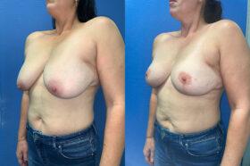 Patient 6 Breast Lift Perth oblique 2