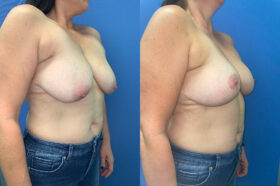 Patient 6 Breast Lift Perth oblique