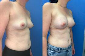 Breast Augmentation Perth front oblique