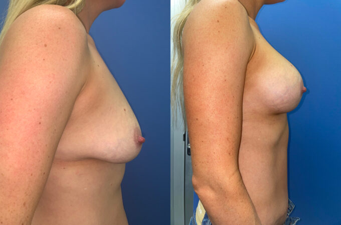 body makeover patient perth side