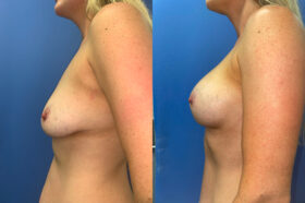 body makeover patient perth side 2