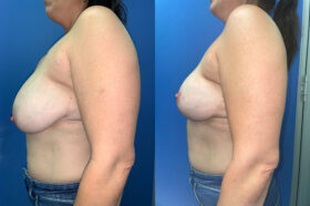 Patient 6 Breast Lift Perth side 2