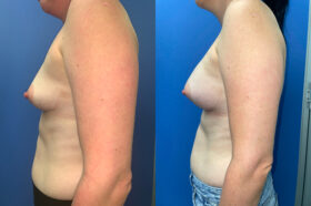 Breast Augmentation Perth front side 2