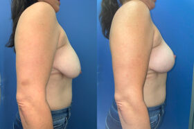 Patient 6 Breast Lift Perth side
