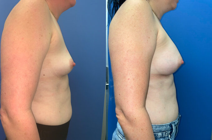 Breast Augmentation Perth front side