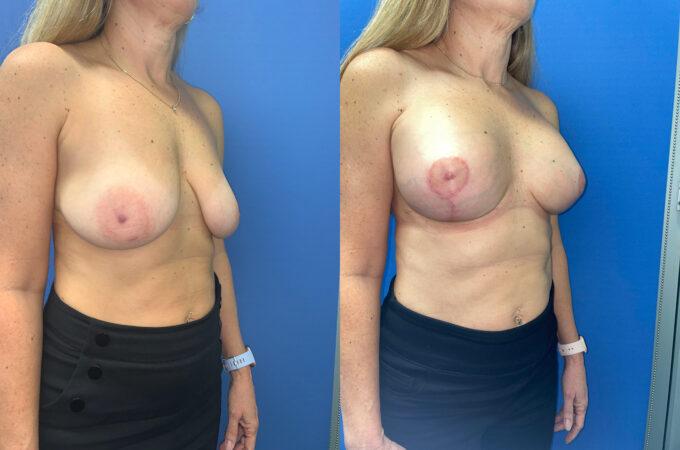 breast augmentation and lift perth oblique