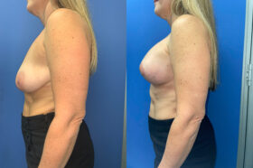 breast augmentation and lift perth side 2