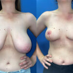 Breast Reduction with Radical Abdominoplasty Perth front