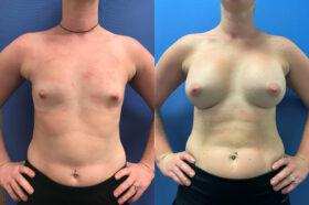 Breast Augmentation Perth front