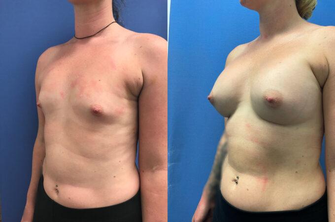 Breast Augmentation Perth oblique 2