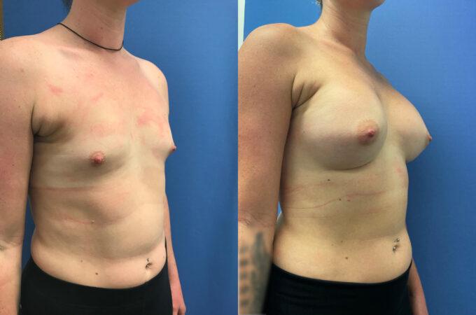 Breast Augmentation Perth oblique
