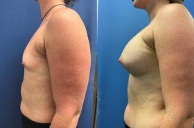 Breast Augmentation Perth side 2