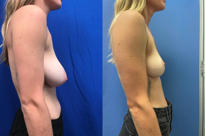 Breast Reduction Perth side