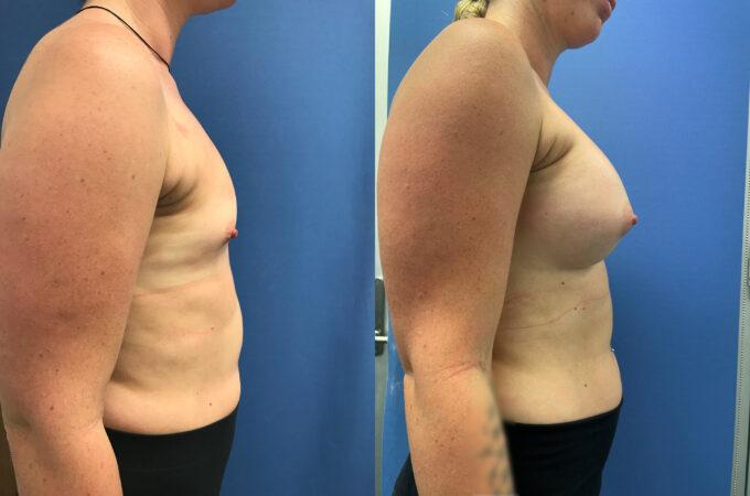 Breast Augmentation Perth side